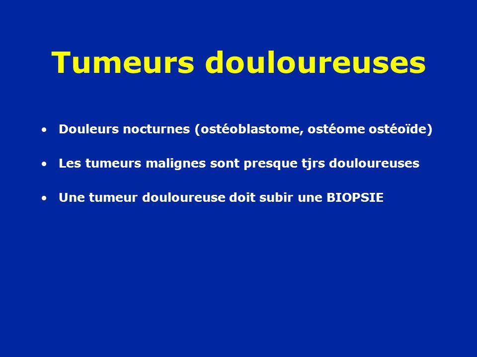 Tumeurs douloureuses Douleurs nocturnes (ostéoblastome, ostéome ostéoïde) Les tumeurs malignes sont presque tjrs douloureuses.