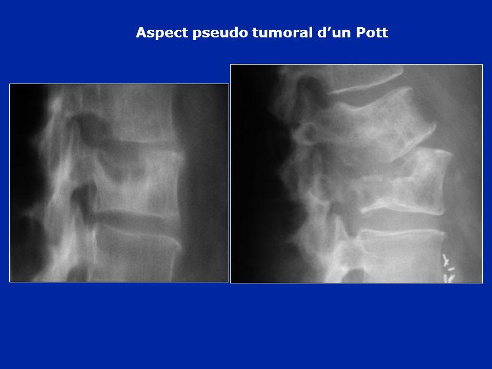 Aspect pseudo tumoral d'un Pott