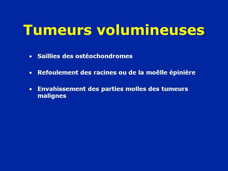 Tumeurs volumineuses Saillies des ostéochondromes
