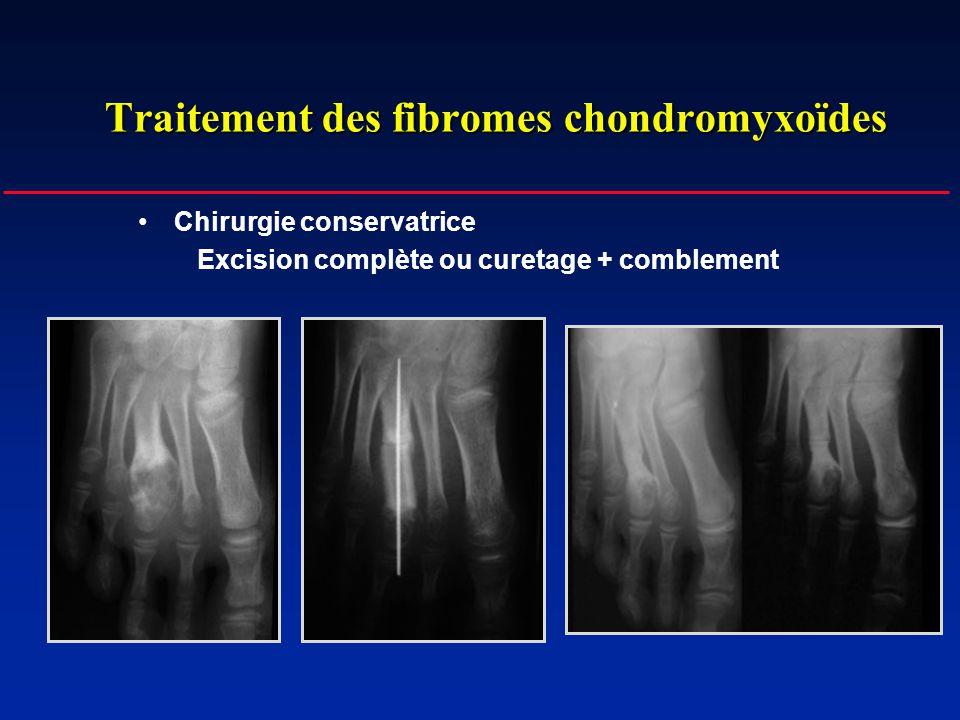 Traitement des fibromes chondromyxoïdes