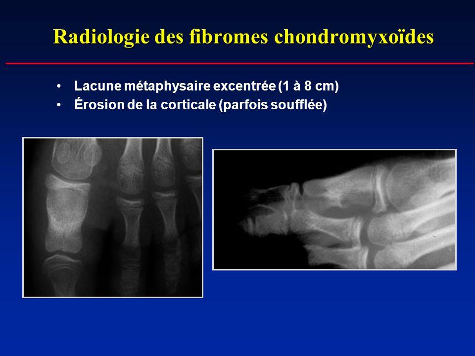 Radiologie des fibromes chondromyxoïdes
