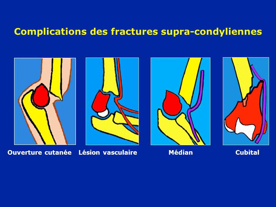 Complications des fractures supra-condyliennes