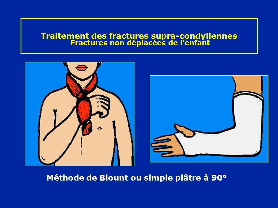 Traitement des fractures supra-condyliennes