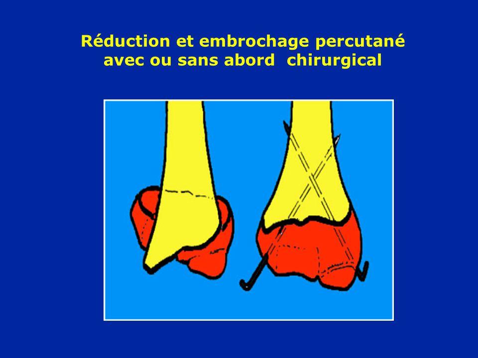Réduction et embrochage percutané avec ou sans abord chirurgical