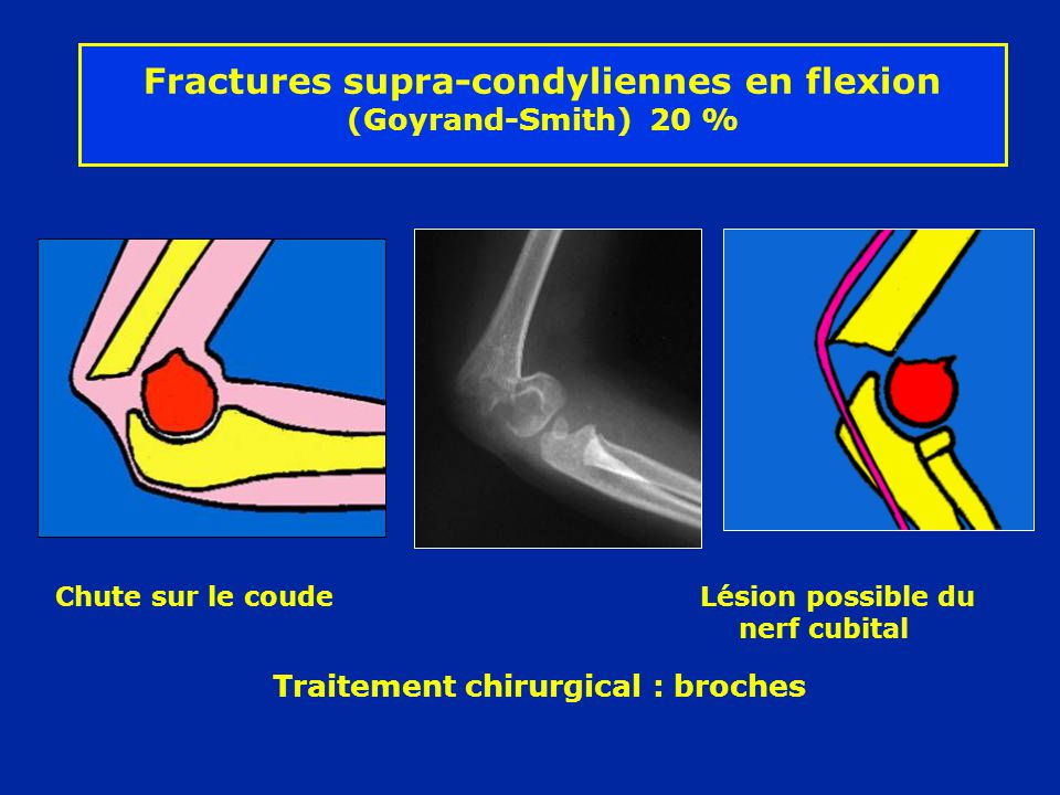 Fractures supra-condyliennes en flexion (Goyrand-Smith) 20 %