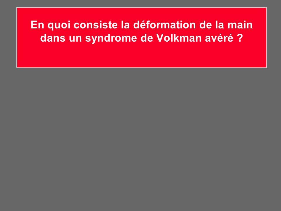 En quoi consiste la déformation de la main dans un syndrome de Volkman avéré