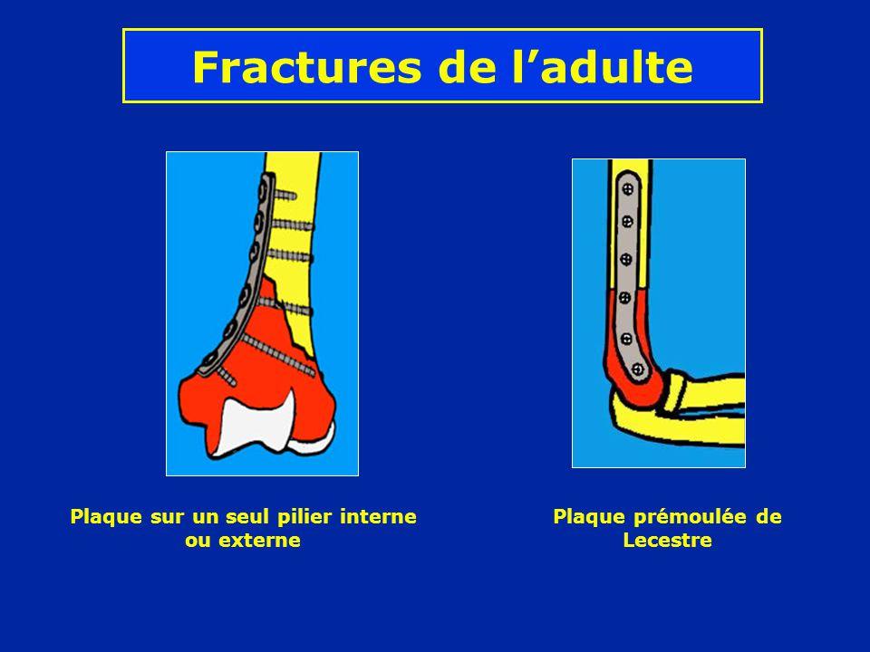 Fractures de l'adulte Plaque sur un seul pilier interne ou externe