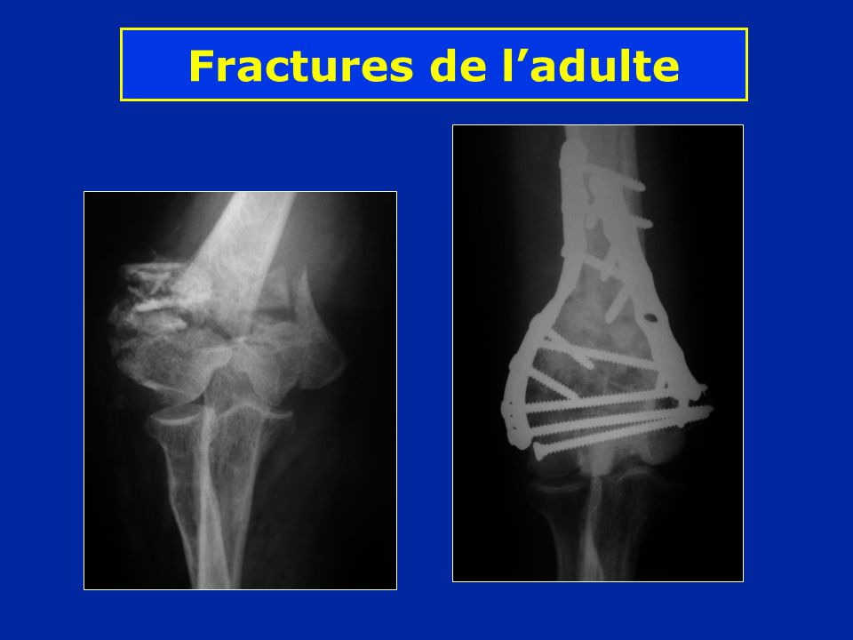 Fractures de l'adulte
