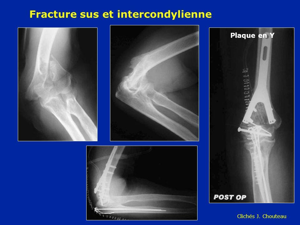 Fracture sus et intercondylienne