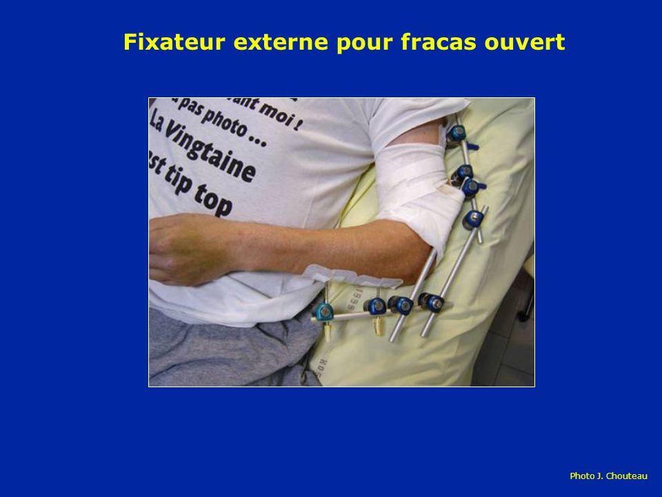 Fixateur externe pour fracas ouvert