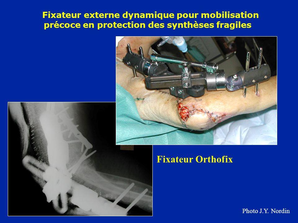 Fixateur externe dynamique pour mobilisation précoce en protection des synthèses fragiles