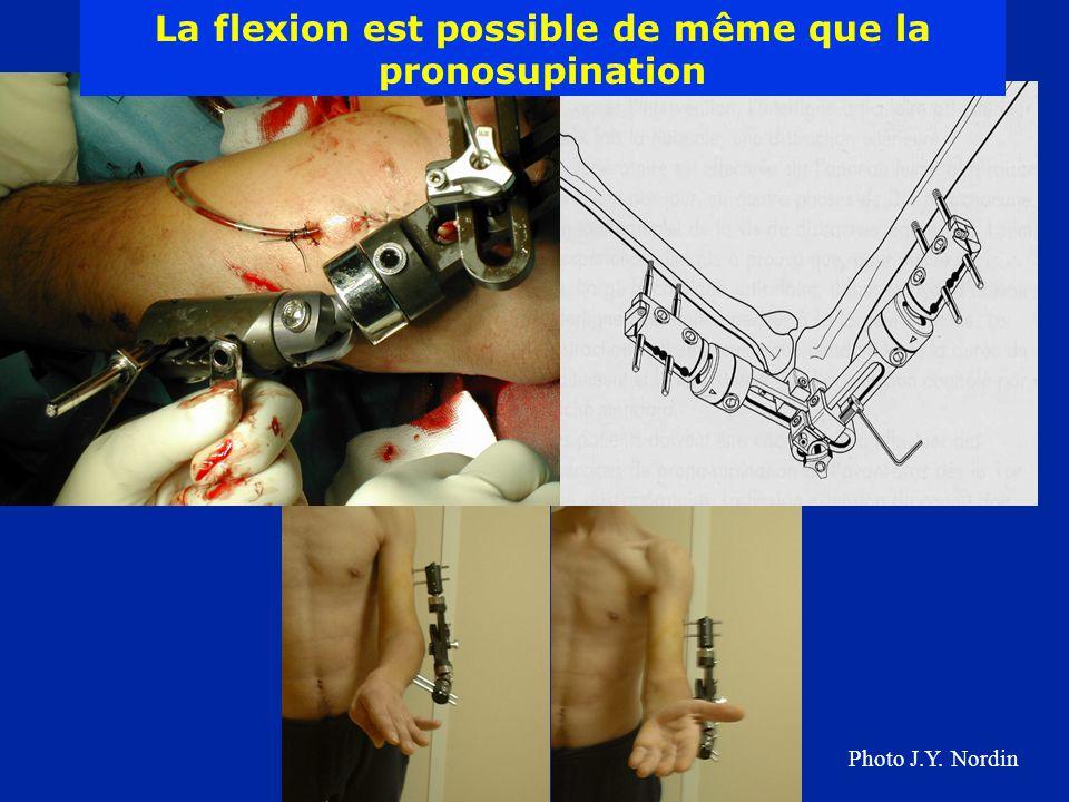 La flexion est possible de même que la pronosupination