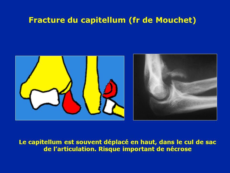 Fracture du capitellum (fr de Mouchet)