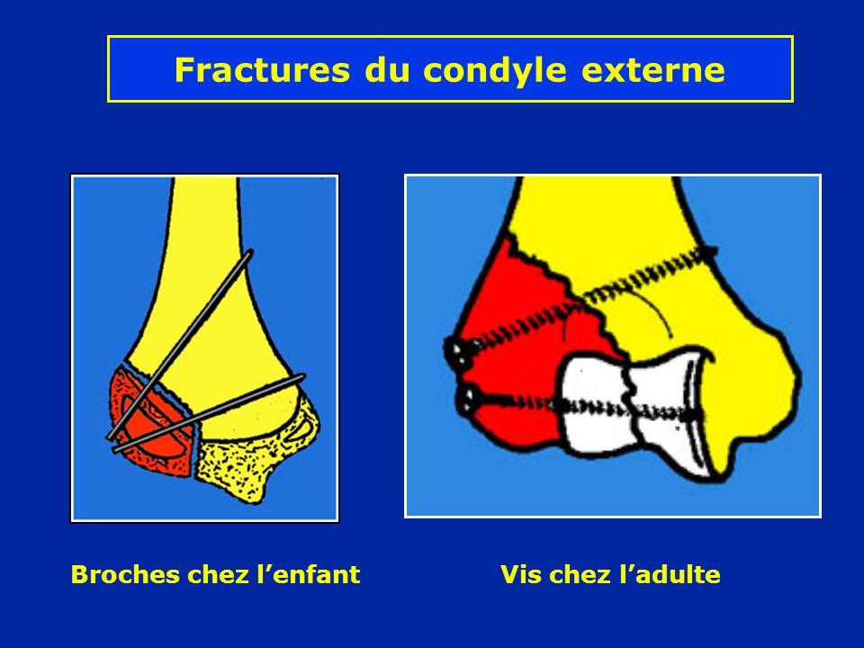 Fractures du condyle externe
