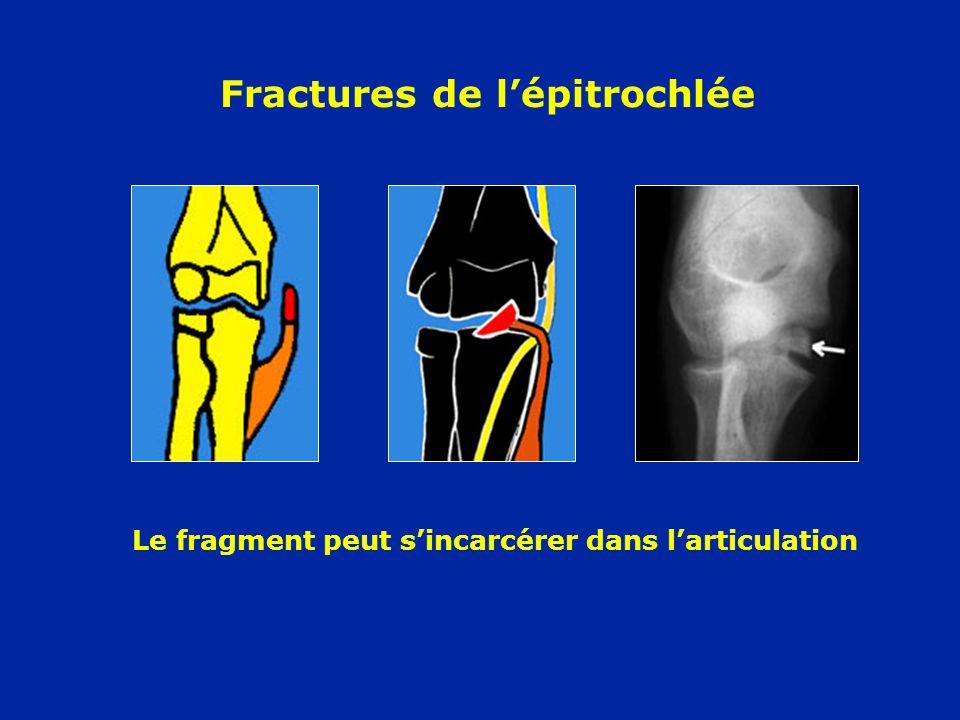 Fractures de l'épitrochlée