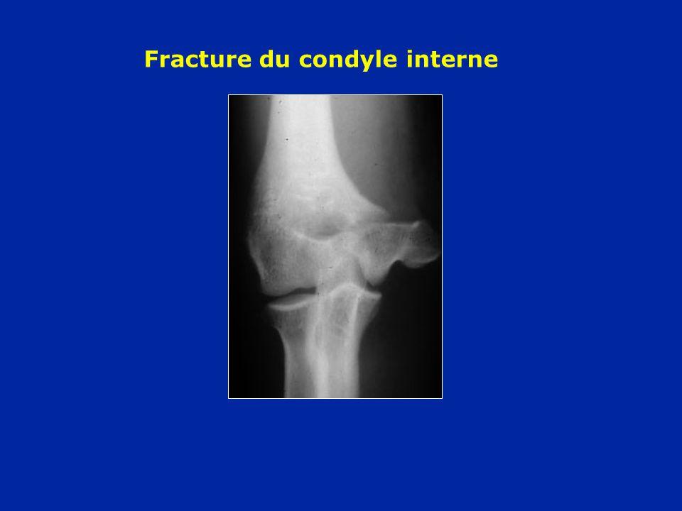Fracture du condyle interne