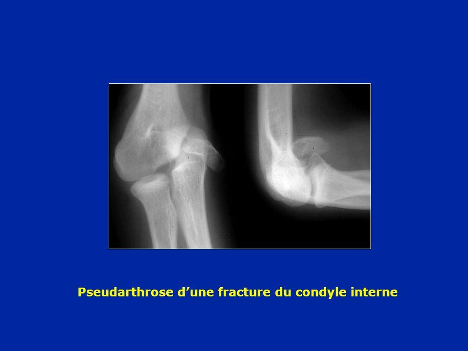 Pseudarthrose d'une fracture du condyle interne