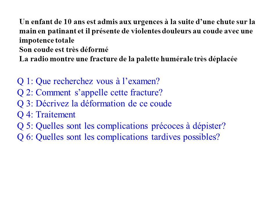 Q 1: Que recherchez vous à l'examen