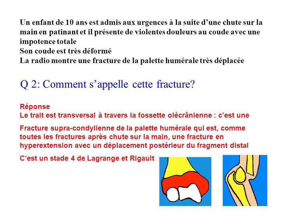 Q 2: Comment s'appelle cette fracture