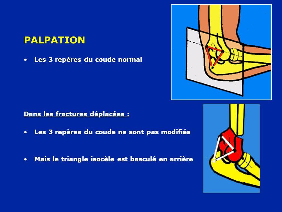 PALPATION Les 3 repères du coude normal Dans les fractures déplacées :