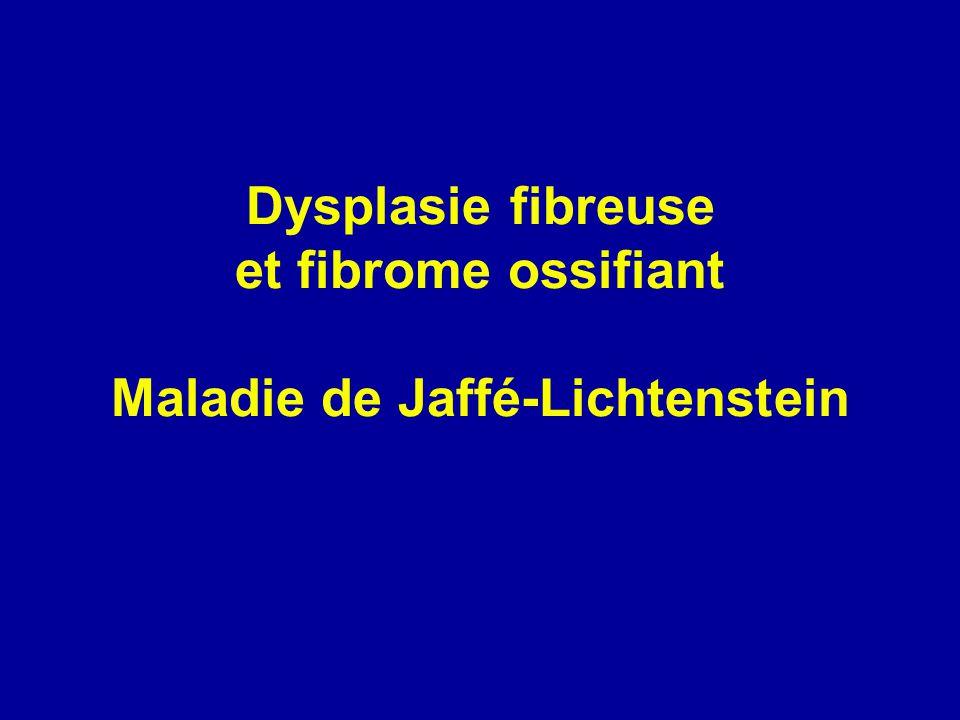 Dysplasie fibreuse et fibrome ossifiant Maladie de Jaffé-Lichtenstein