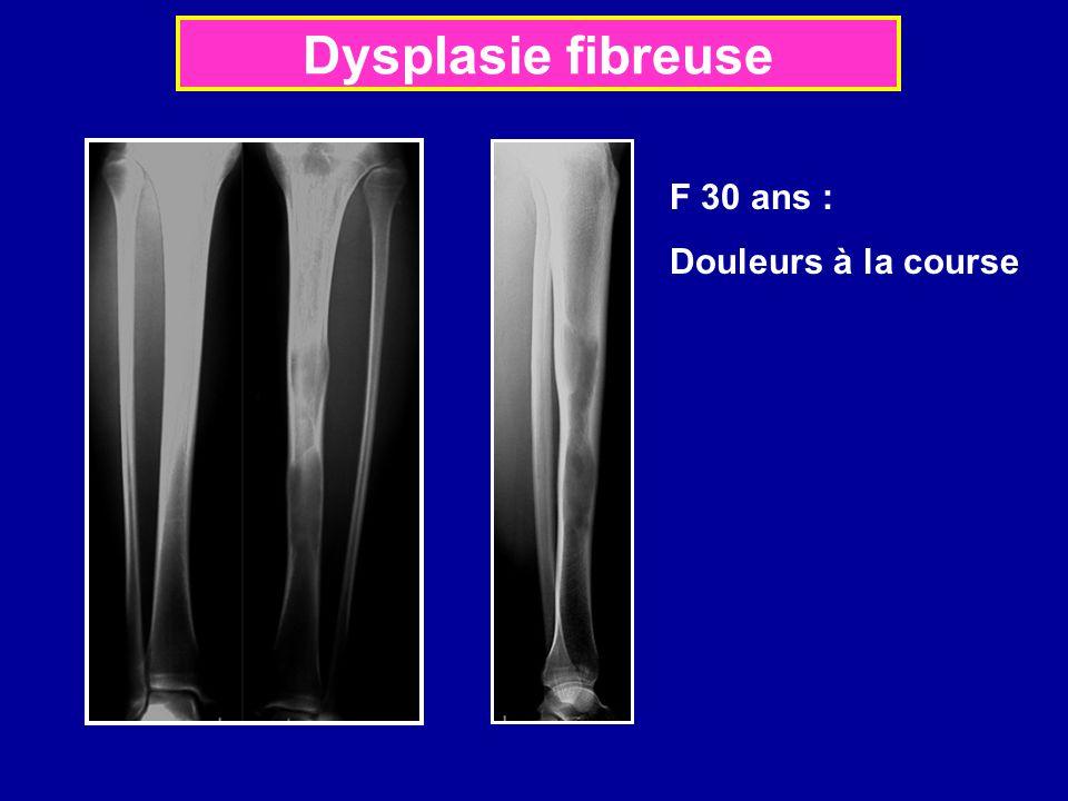 Dysplasie fibreuse F 30 ans : Douleurs à la course