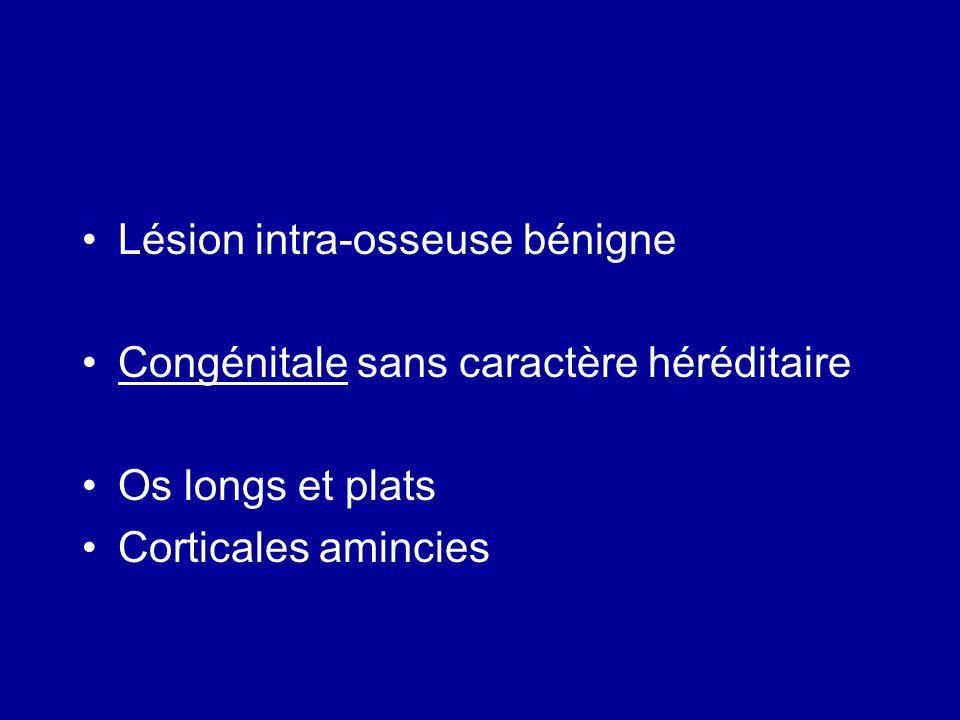 Lésion intra-osseuse bénigne