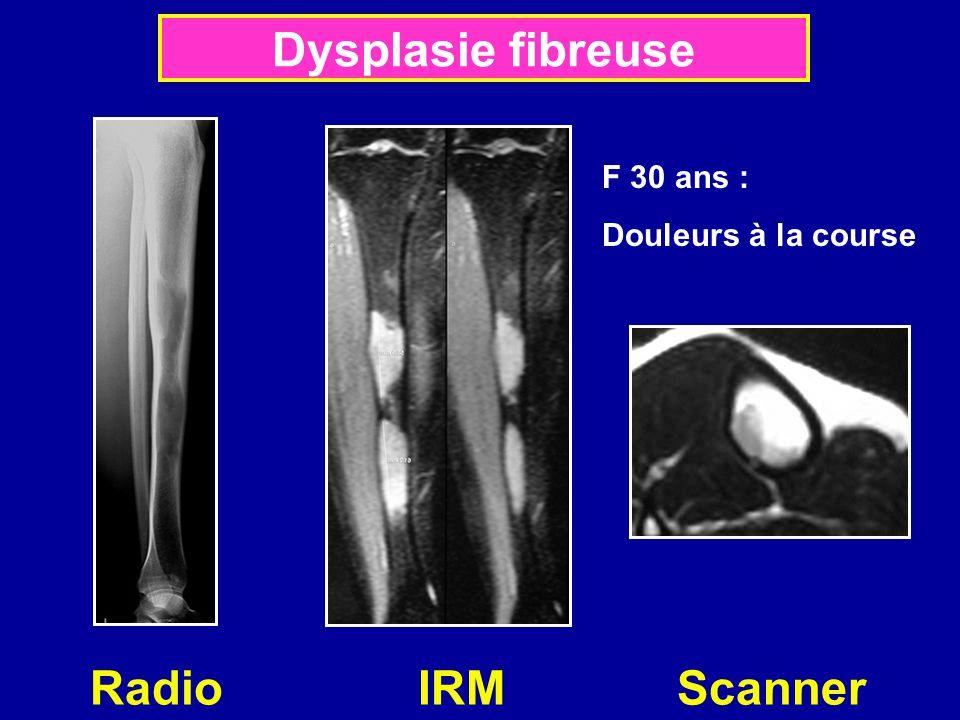 Dysplasie fibreuse F 30 ans : Douleurs à la course Radio IRM Scanner