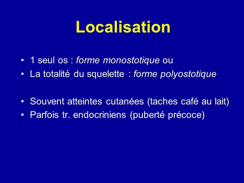Localisation 1 seul os : forme monostotique ou