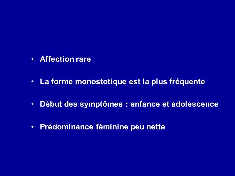 Affection rare La forme monostotique est la plus fréquente. Début des symptômes : enfance et adolescence.