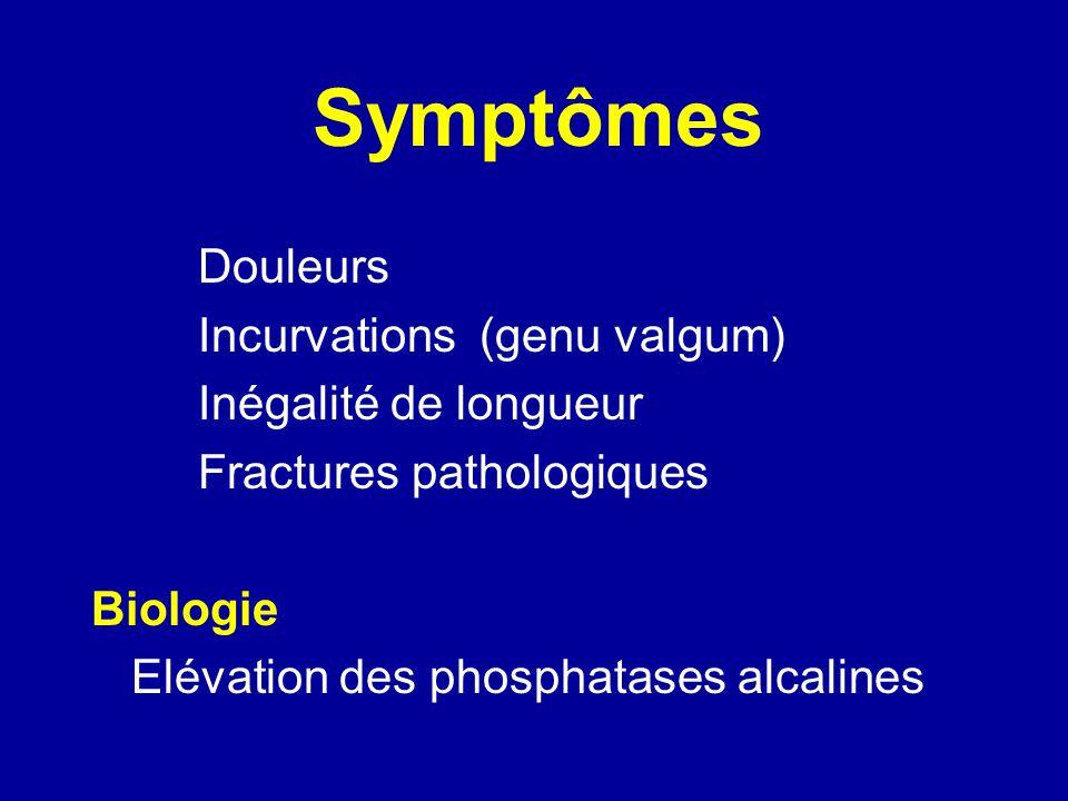 Symptômes Douleurs Incurvations (genu valgum) Inégalité de longueur