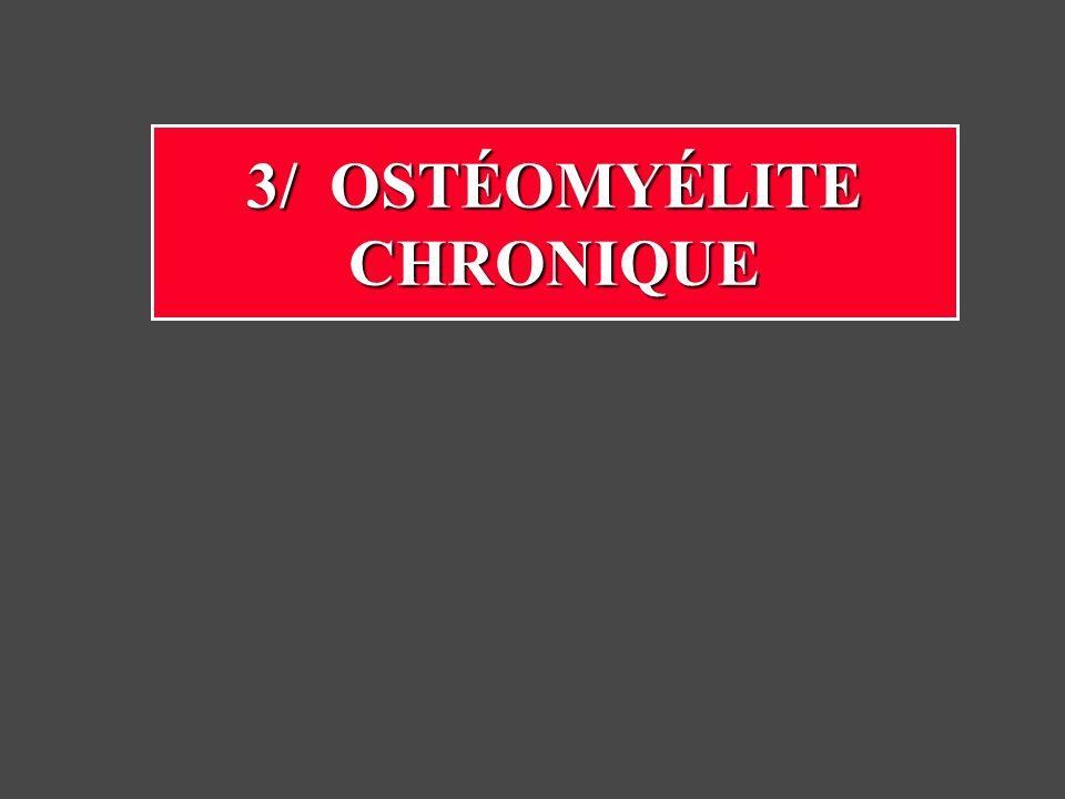 3/ OSTÉOMYÉLITE CHRONIQUE