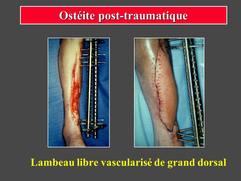 Lambeau libre vascularisé de grand dorsal