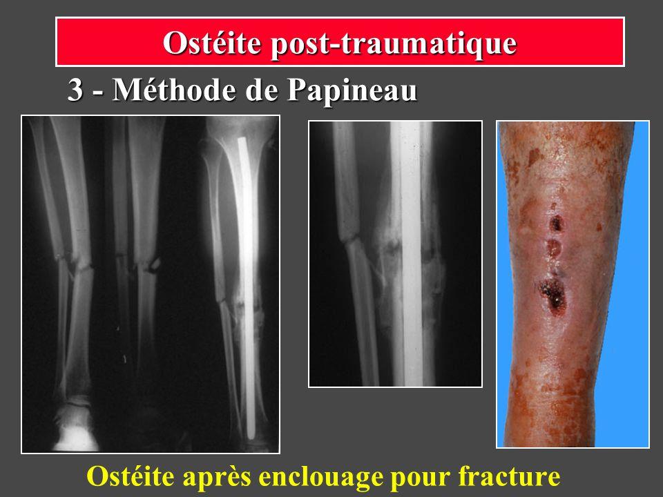 Ostéite après enclouage pour fracture