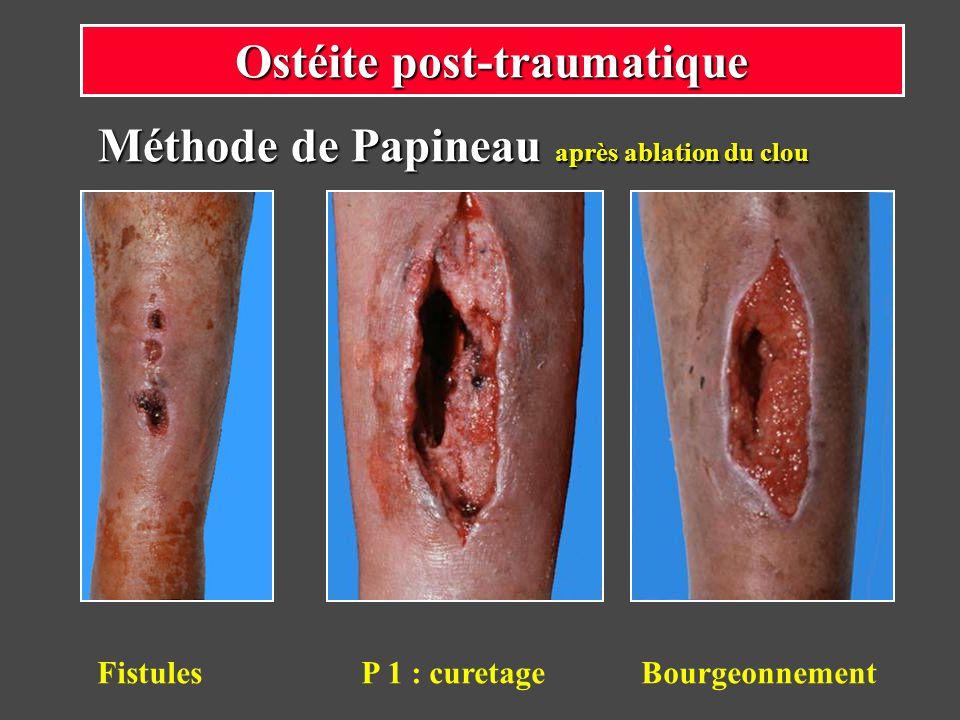 Méthode de Papineau après ablation du clou