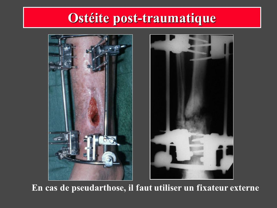 Ostéite post-traumatique