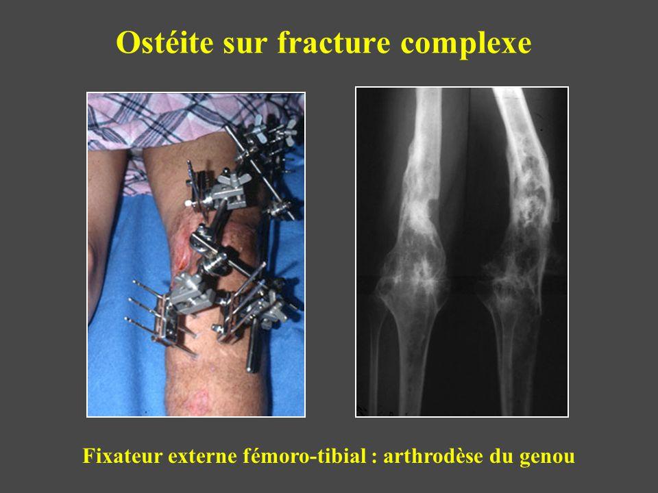 Ostéite sur fracture complexe