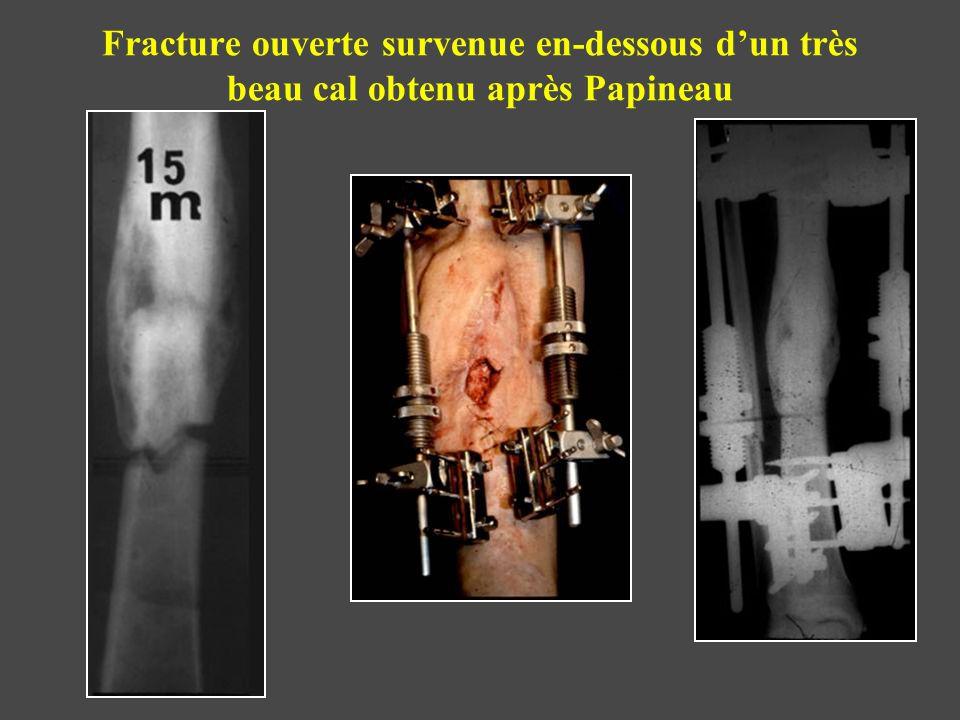 Fracture ouverte survenue en-dessous d'un très beau cal obtenu après Papineau