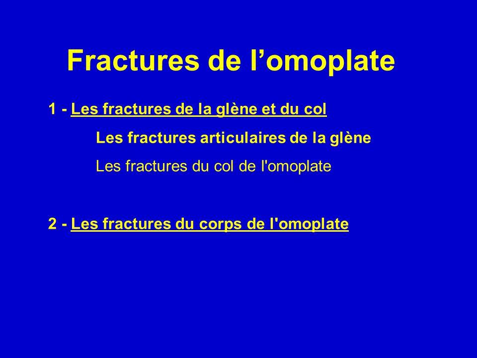 Fractures de l'omoplate