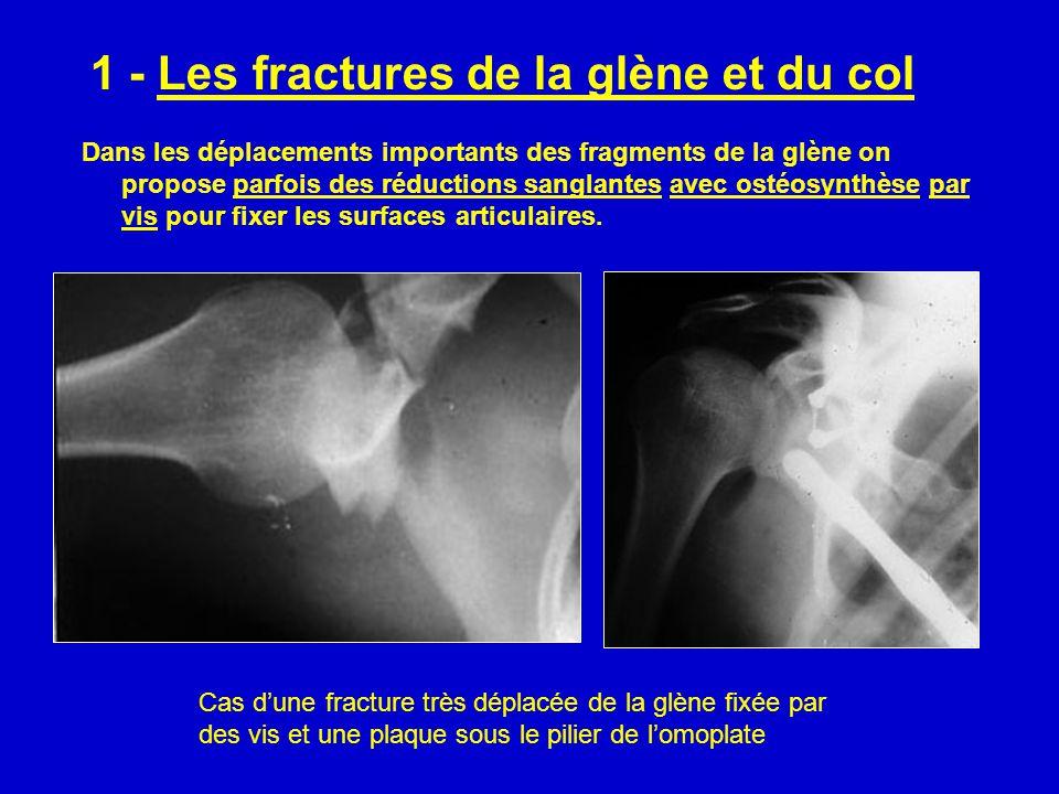 1 - Les fractures de la glène et du col