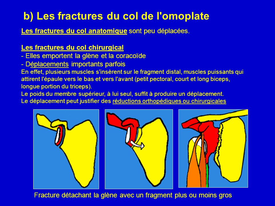 b) Les fractures du col de l omoplate