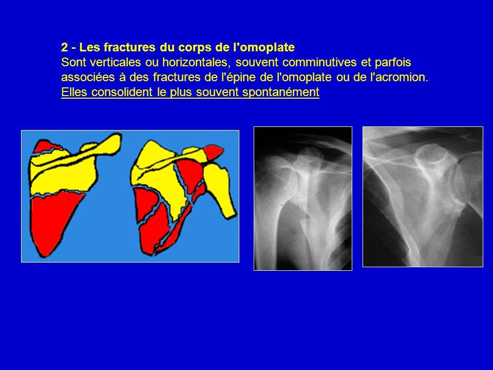 2 - Les fractures du corps de l omoplate