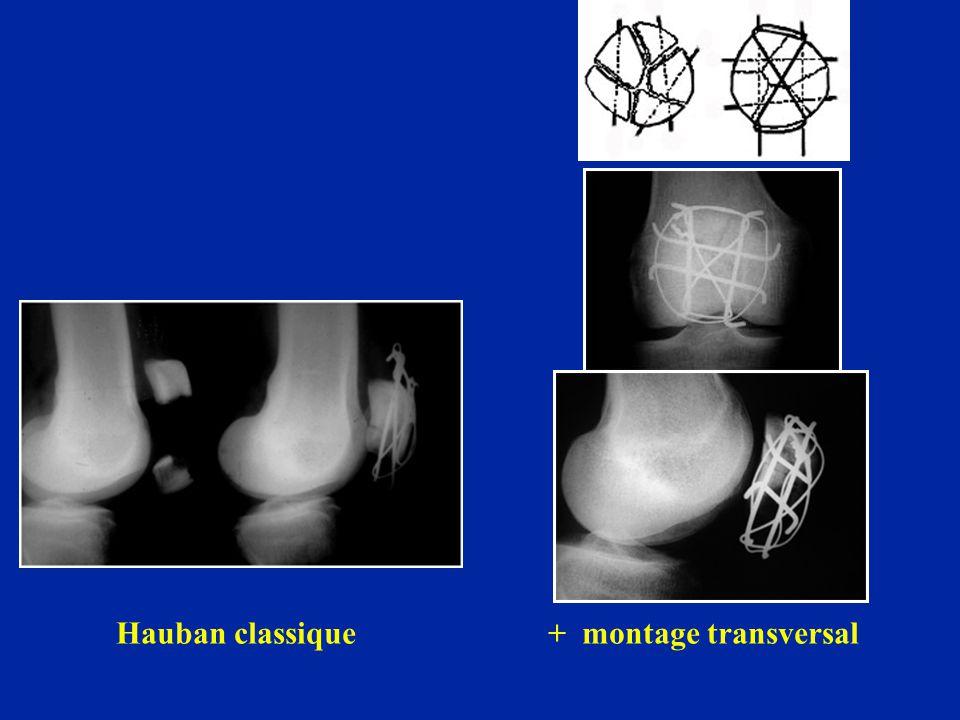 Hauban classique + montage transversal