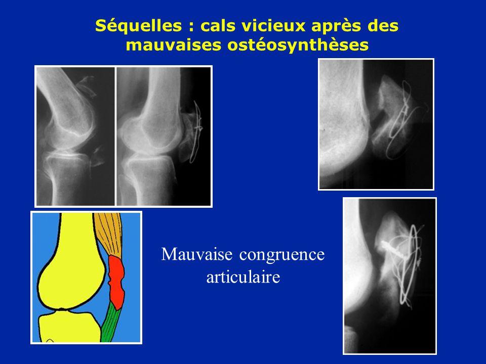 Séquelles : cals vicieux après des mauvaises ostéosynthèses