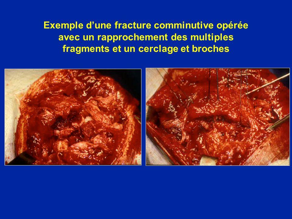 Exemple d'une fracture comminutive opérée avec un rapprochement des multiples fragments et un cerclage et broches