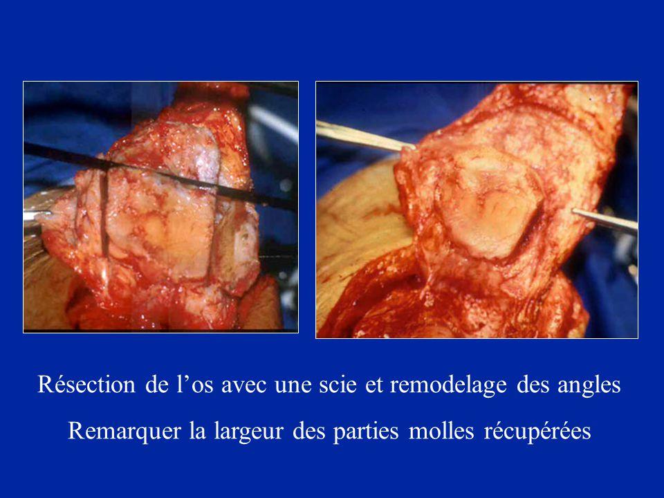Résection de l'os avec une scie et remodelage des angles