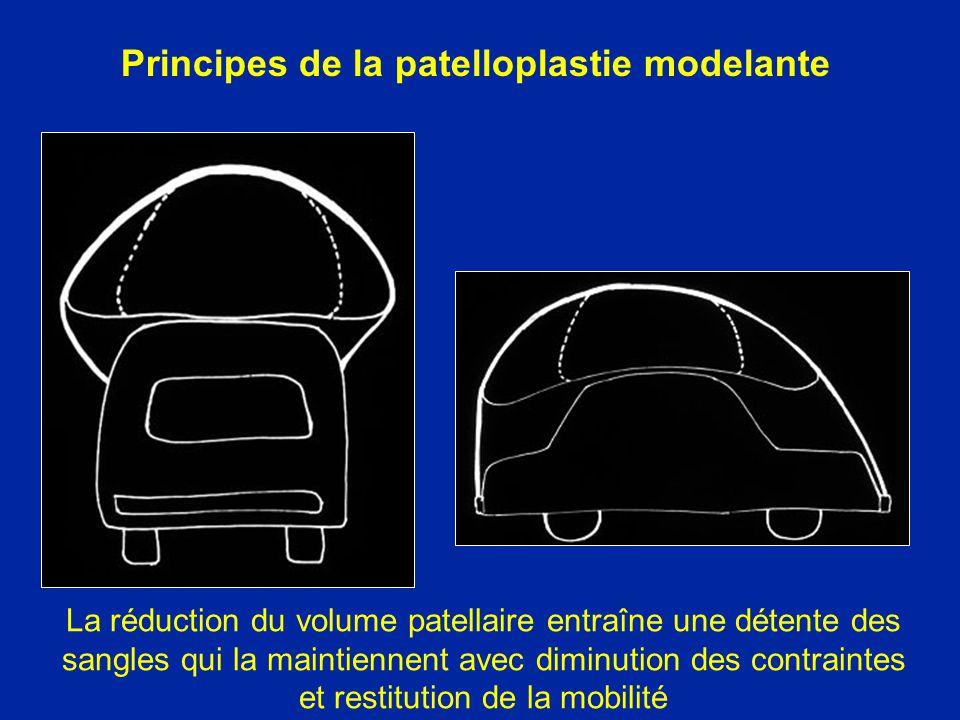 Principes de la patelloplastie modelante