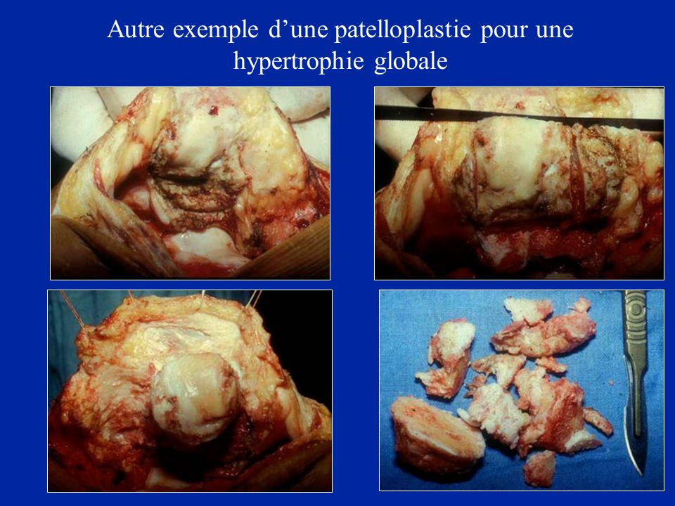 Autre exemple d'une patelloplastie pour une hypertrophie globale