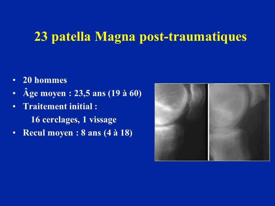 23 patella Magna post-traumatiques