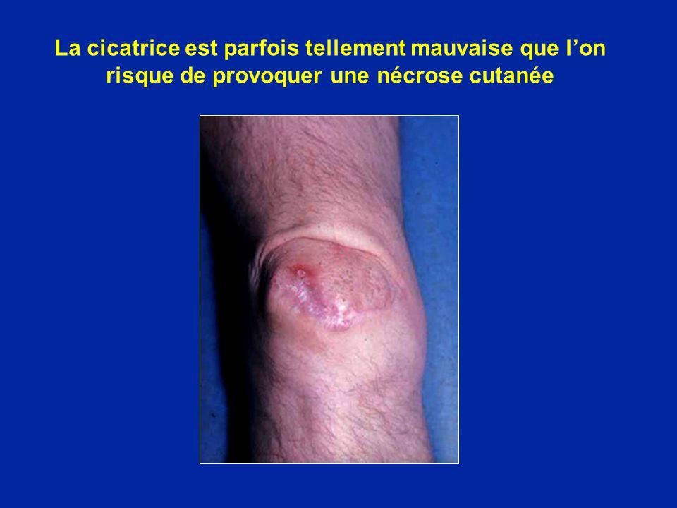 La cicatrice est parfois tellement mauvaise que l'on risque de provoquer une nécrose cutanée